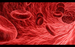 Part 1: Sickle Cell Anemia, the Neglected Disease